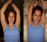 Hairy Armpits – BEFORE AND AFTER