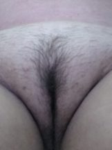 Hot Fat White Pussy Exposed