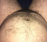 My Fat Belly
