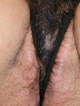 Hairy Zara